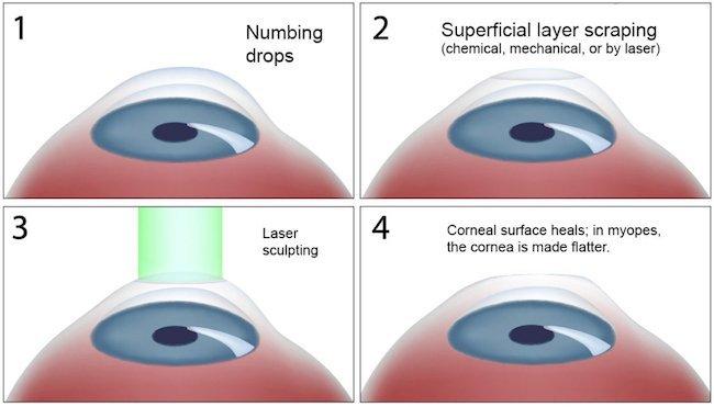 PRK Eye Surgery