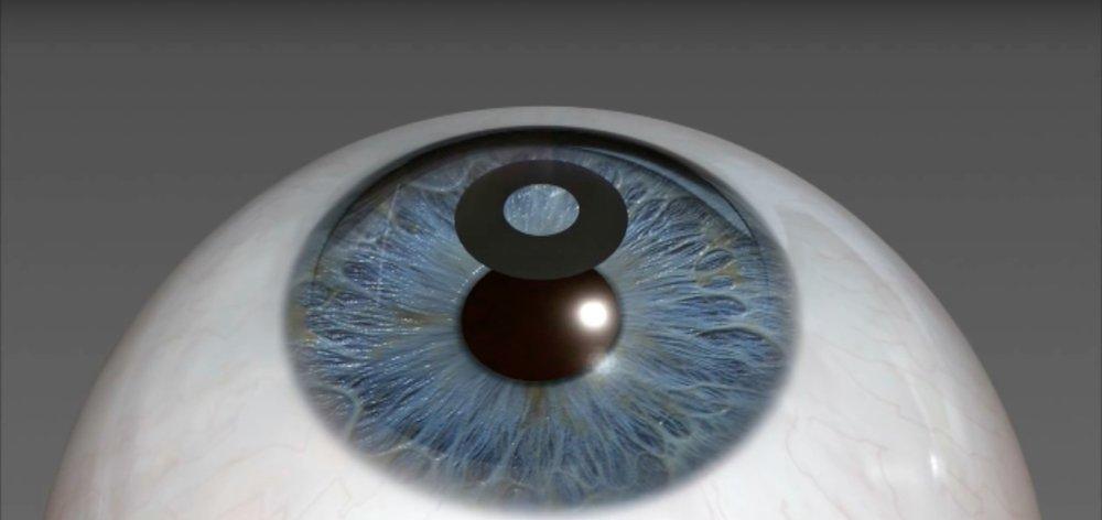 Choosing Presbyopia Treatment At 40 Years Of Age - corneal inlay