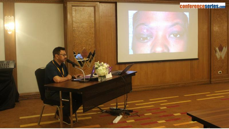 4th international conference on ophthalmology 3