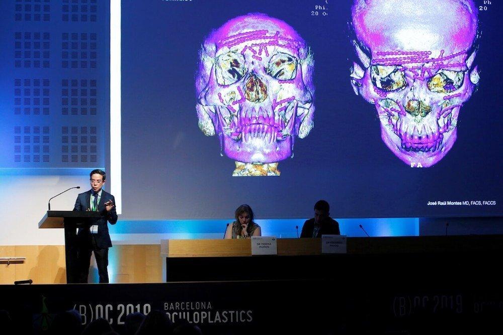 así fue el barcelona oculoplastics 2019 19