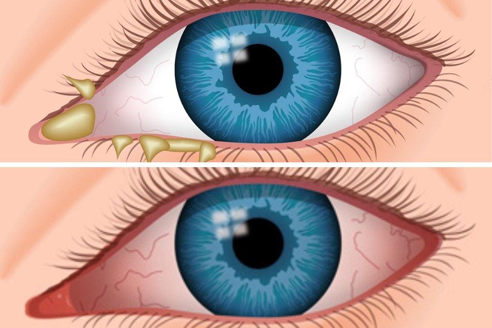 pagkakaiba ng allergies at pink eye