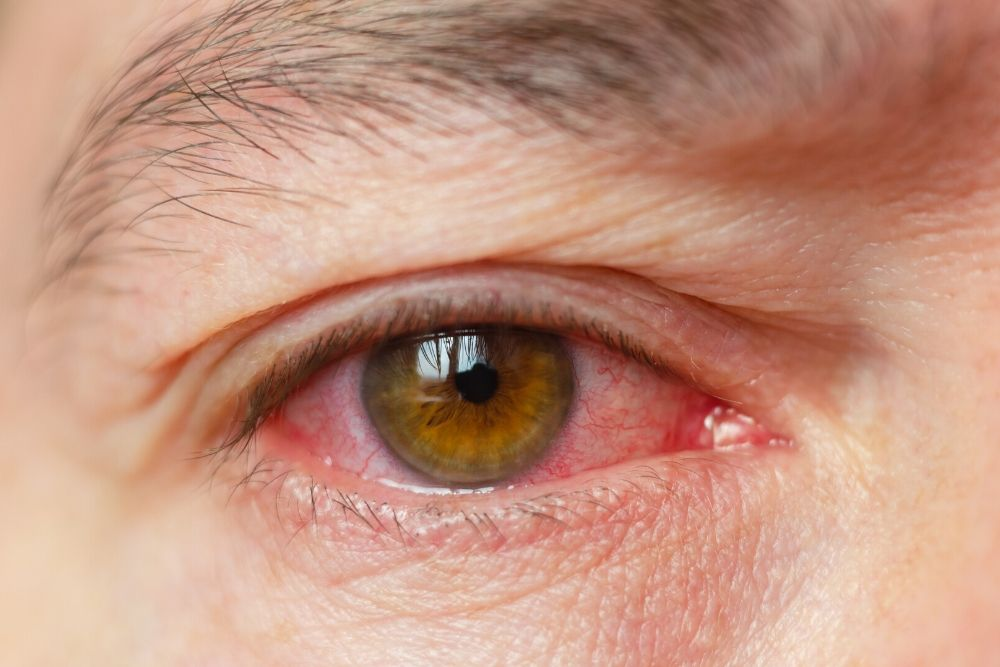 Eye Test Could Provide Early Warning for Dementia_2