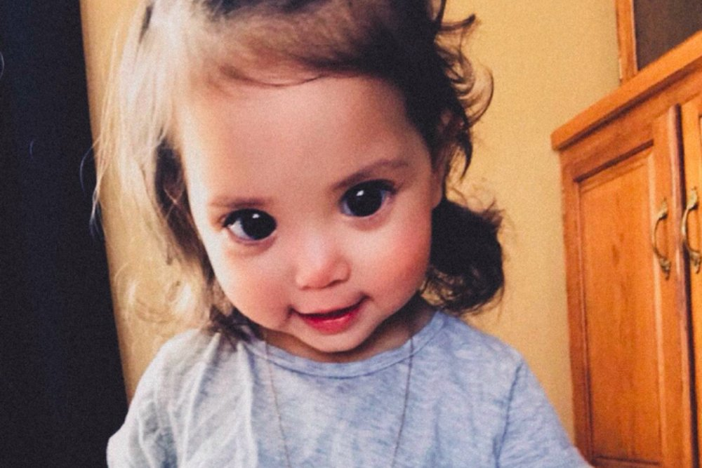 Beautiful Giant Eyes of a Two-year-old Girl is Caused by a Rare Genetic Disorder_1