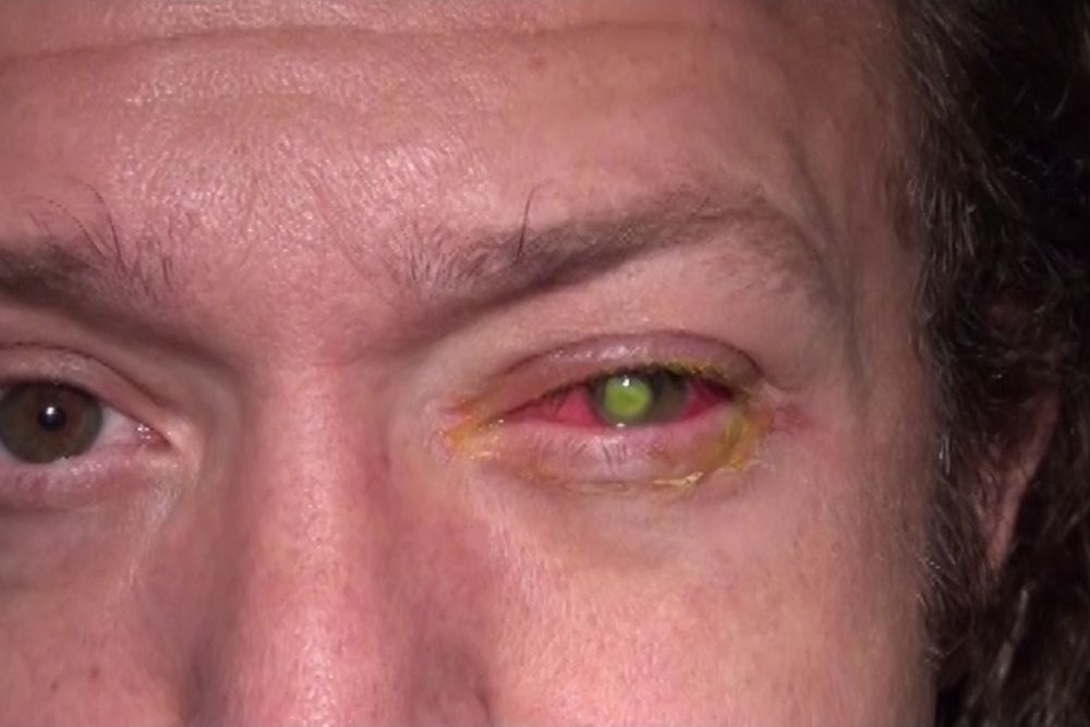Graphic Photos Warn People Never to Sleep With Your Contact Lenses_1