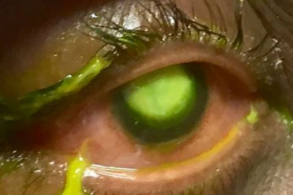 Graphic Photos Warn People Never to Sleep With Your Contact Lenses_2