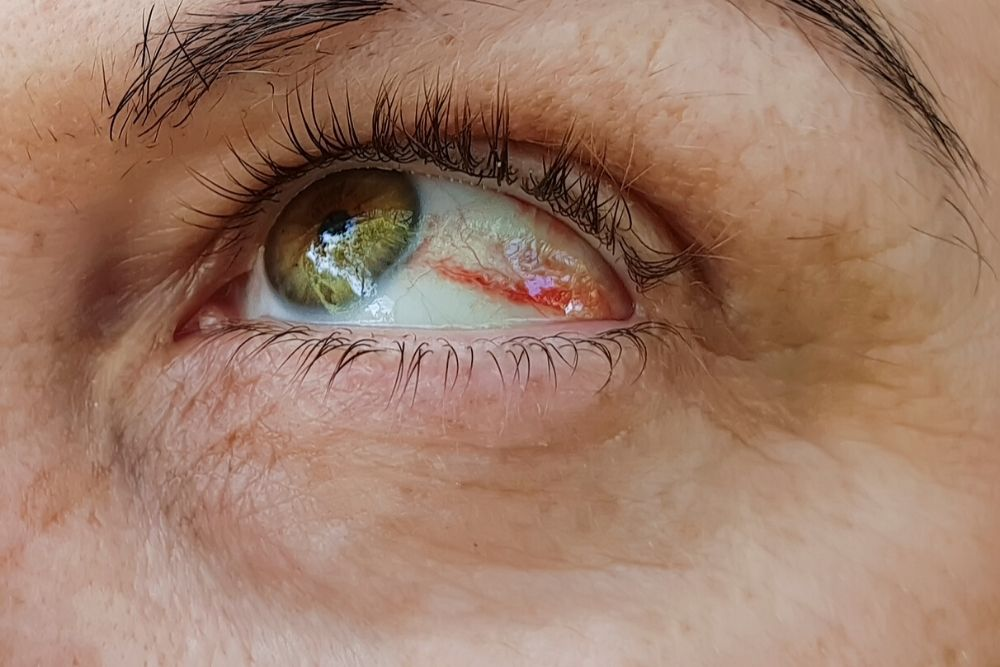 red spot sa mata