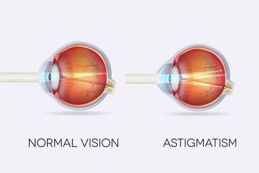 kumpletong gabay sa astigmatism