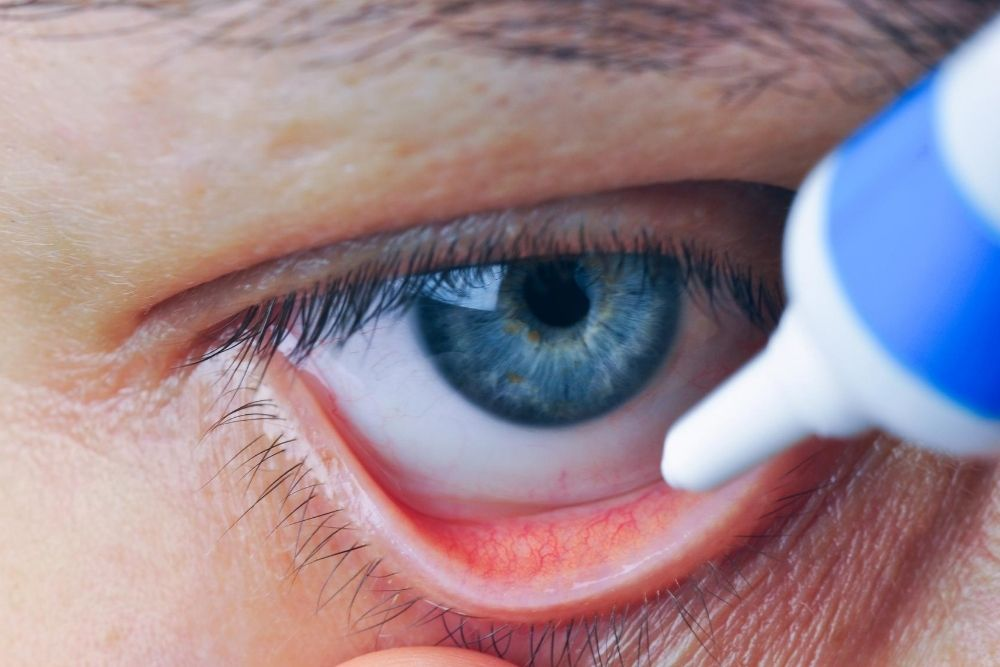 Beware of Unsterile Eye Drops and Ointments