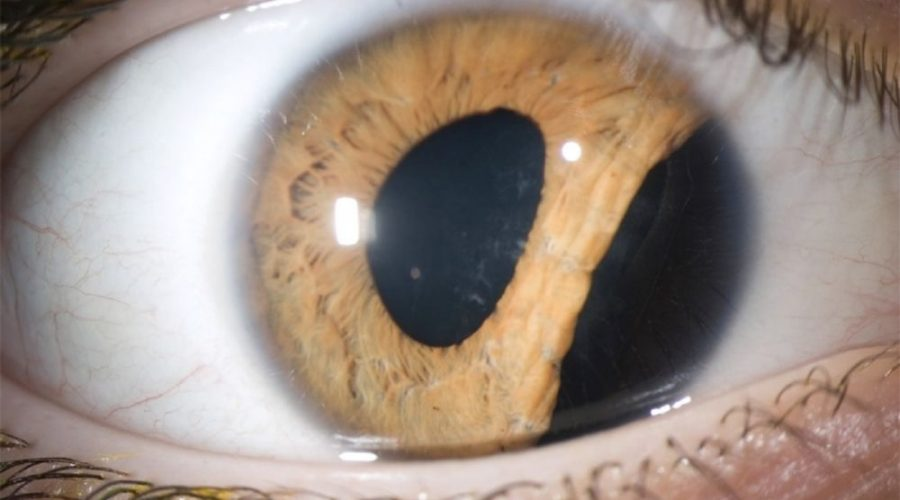 Bungee Cord Injury Caused Collapse in a Man's Iris
