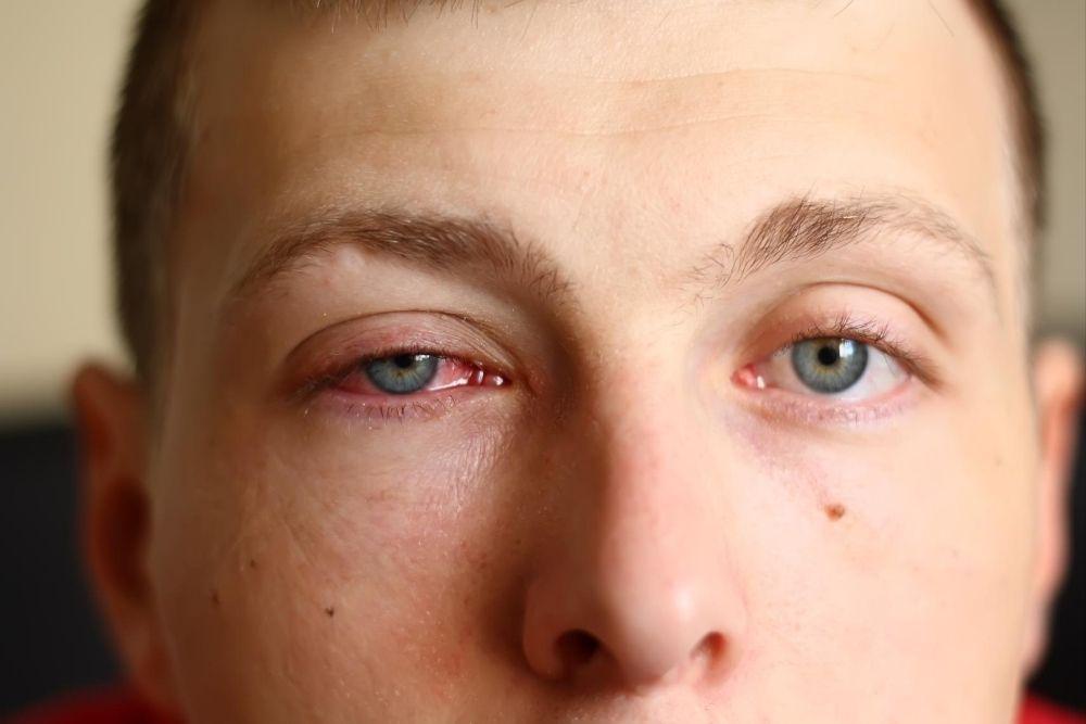 Can Coronavirus Transmission Happen Through the Eyes 2