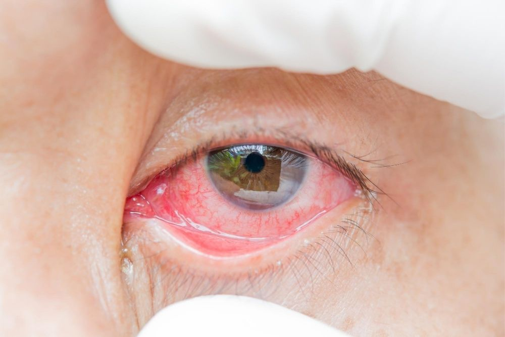 Do Red Eyes Mean Coronavirus Infection