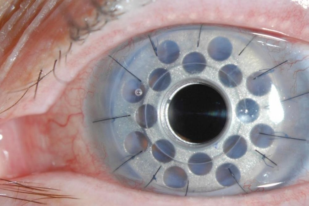 Is Transplant of the Whole Human Eye Possible_ 3