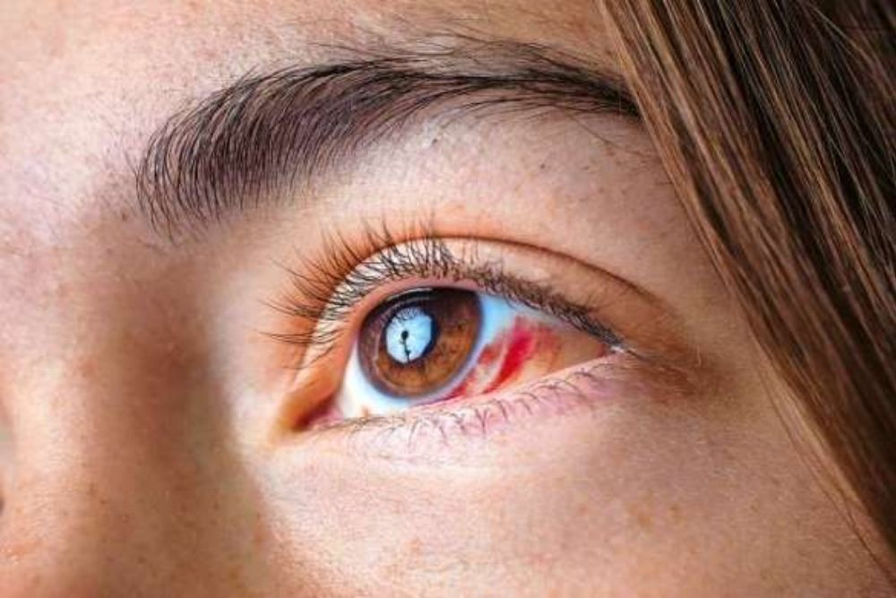 Can UV Exposure Cause Eye Cancer?