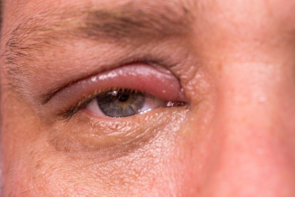 Chalazion Bump on Eyelid Causes & Treatment