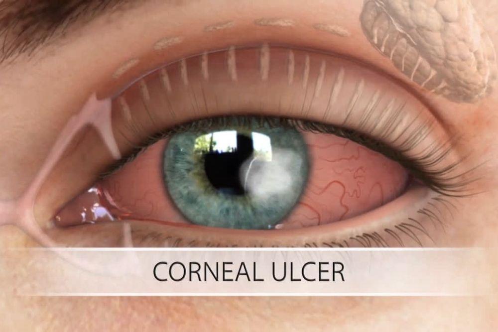 ano ang corneal ulcer