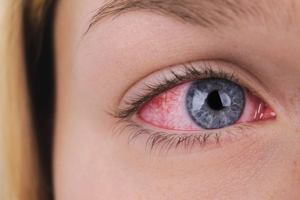 ano ang eye herpes