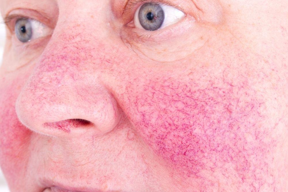 ano ang ocular rosacea