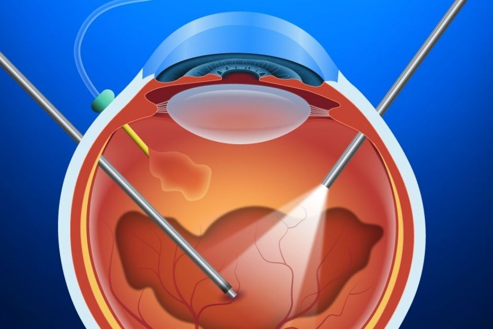 What is Retinal Detachment