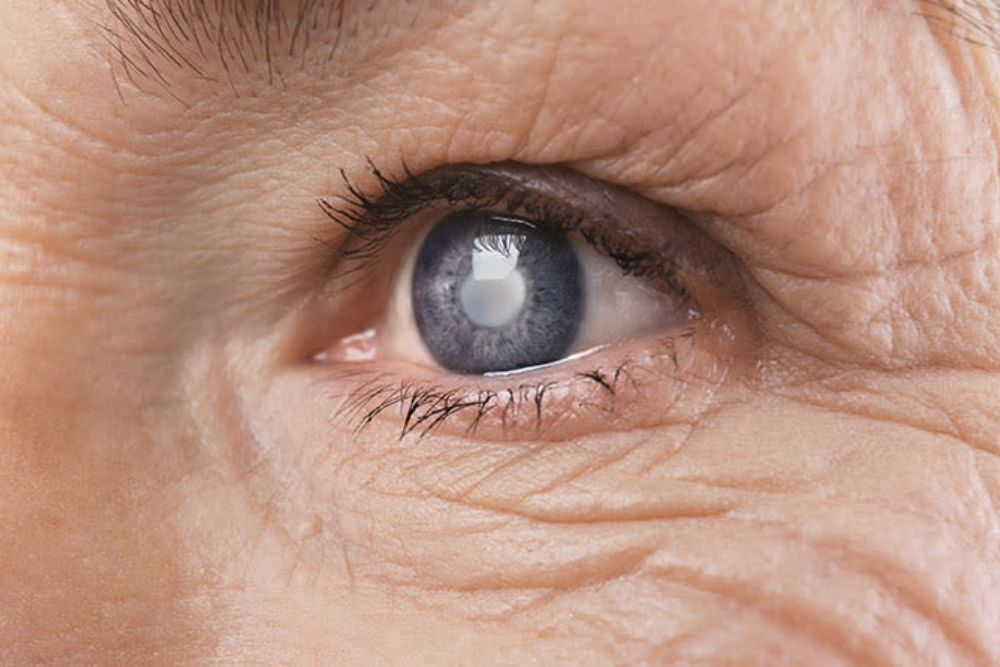 Can Arthritis Affect Your Eyes?