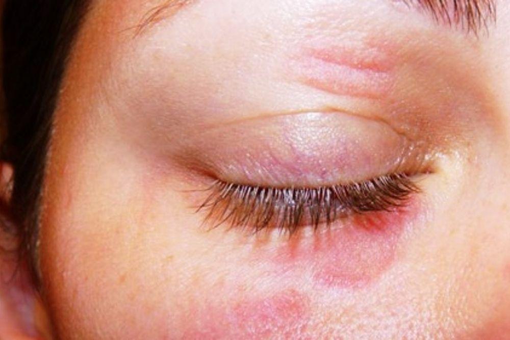 ano ang eyelid dermatitis