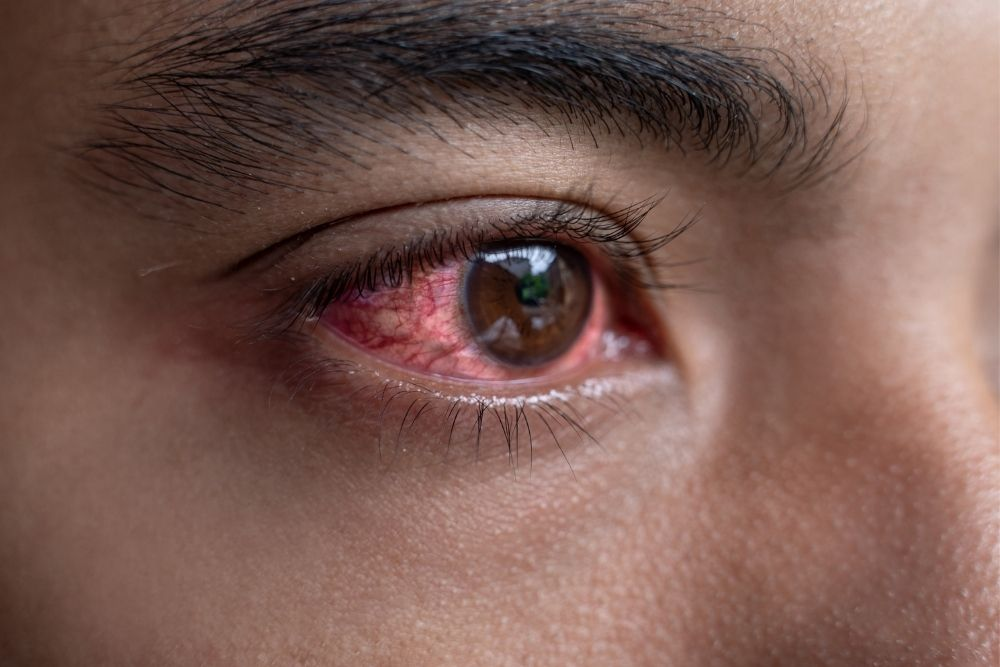 How to Safely Flush the Eye as First Aid