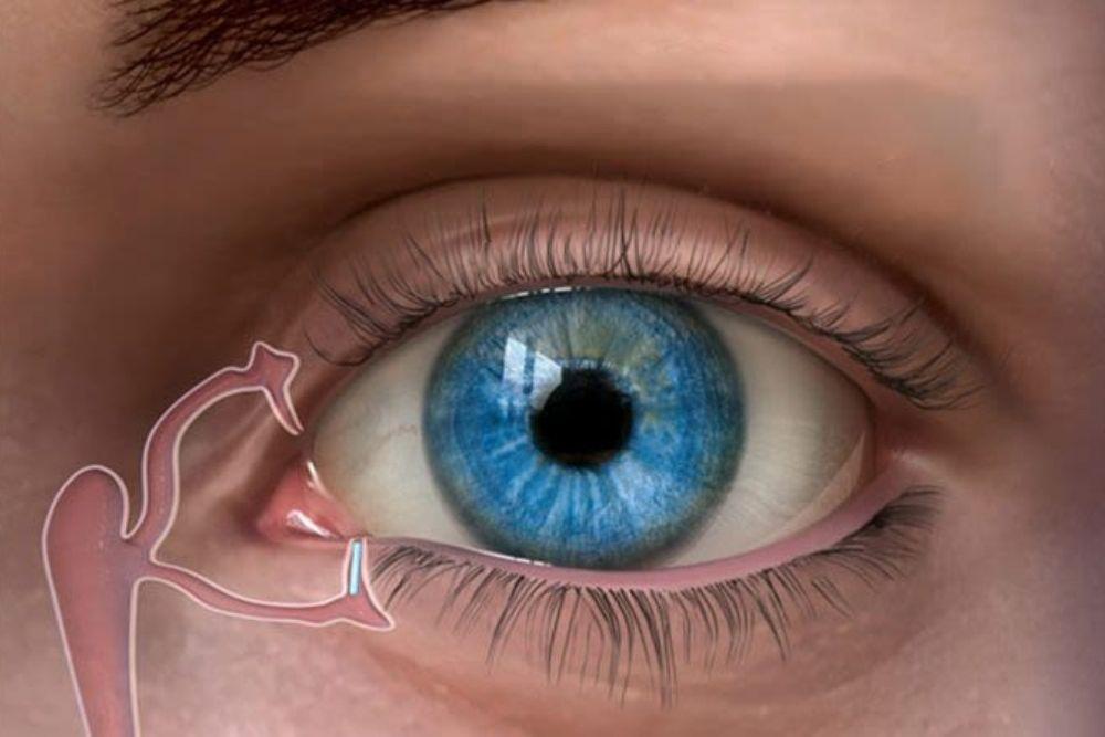 Punctal Plugs to Treat Dry Eyes