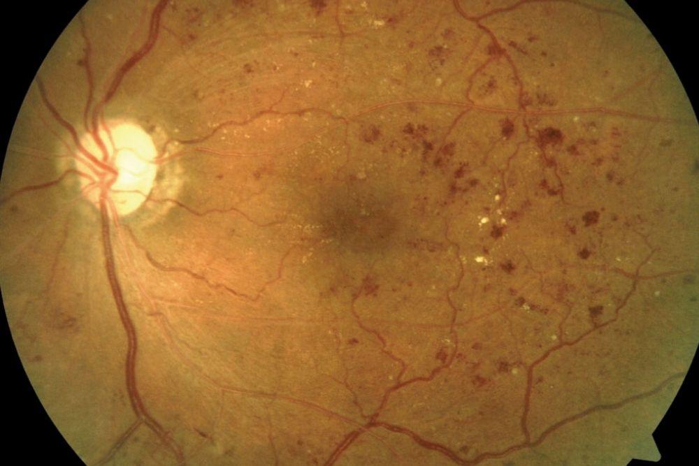 diabetic retinopathy at diabetic macular edema