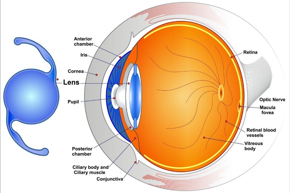 Guide for Intraocular Lenses