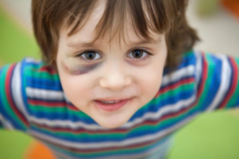 Keeping Child's Eye Safe From Toys