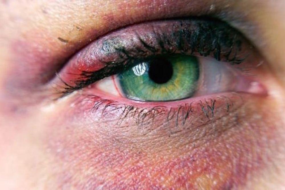 paggamot ng black eye