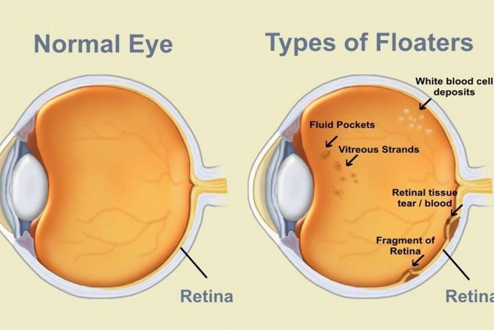 The Causes and Treatment of Eye Floaters