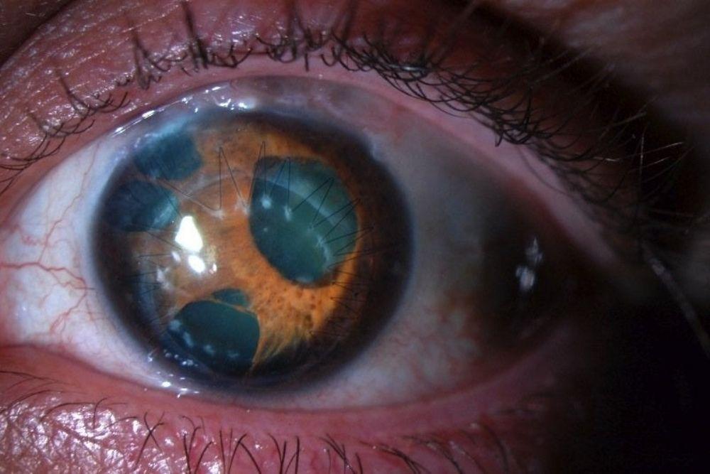 rare eye diseases