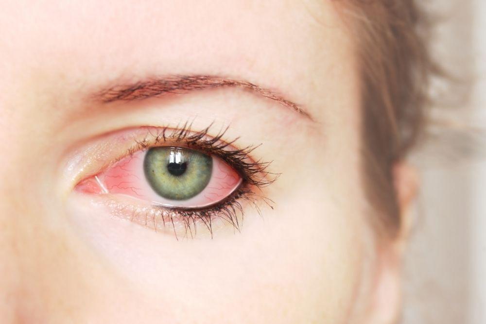 panganib ng pink eye