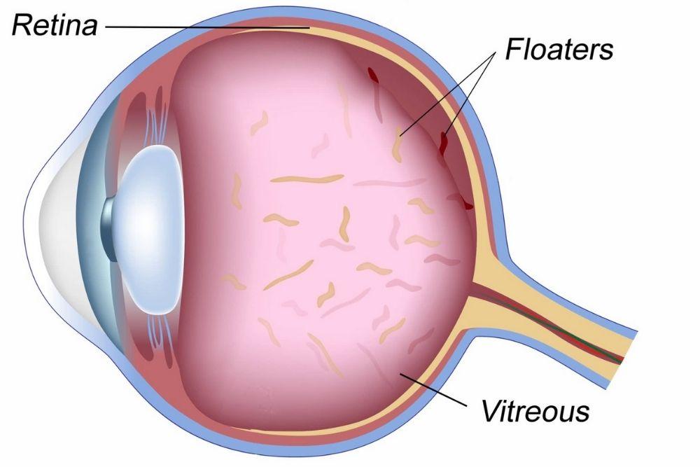 mga uri ng eye floater