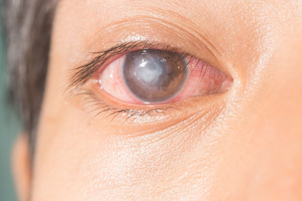 different types of eye infections