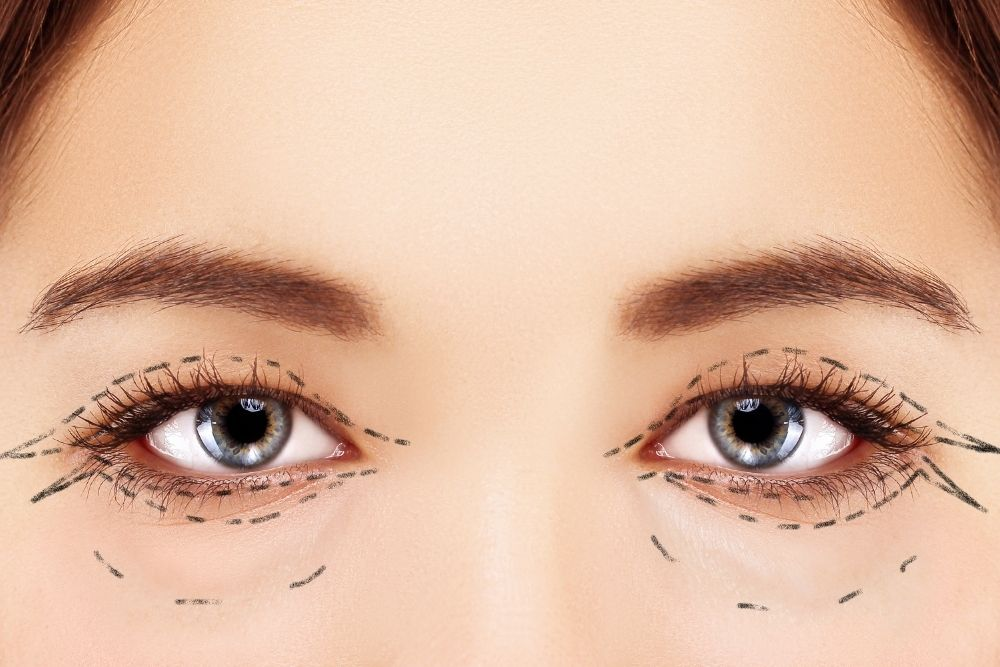 truth behind having an eyelid surgery