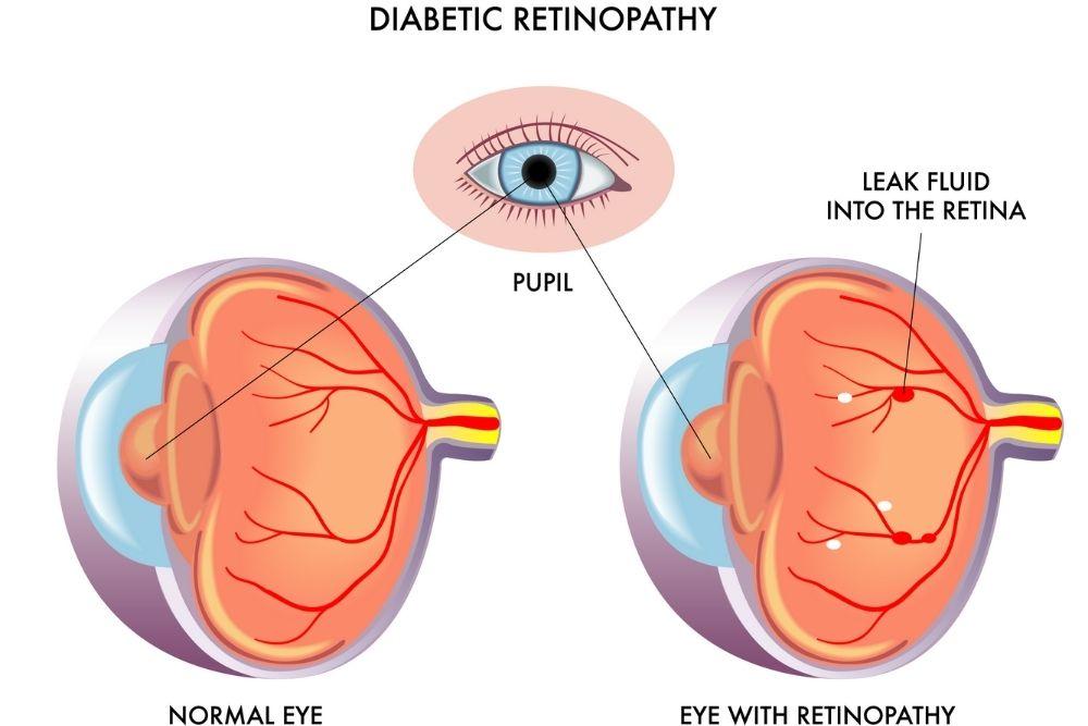 paggamot ng diabetic retinopathy