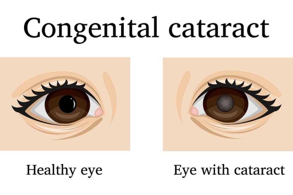 types of congenital cataracts