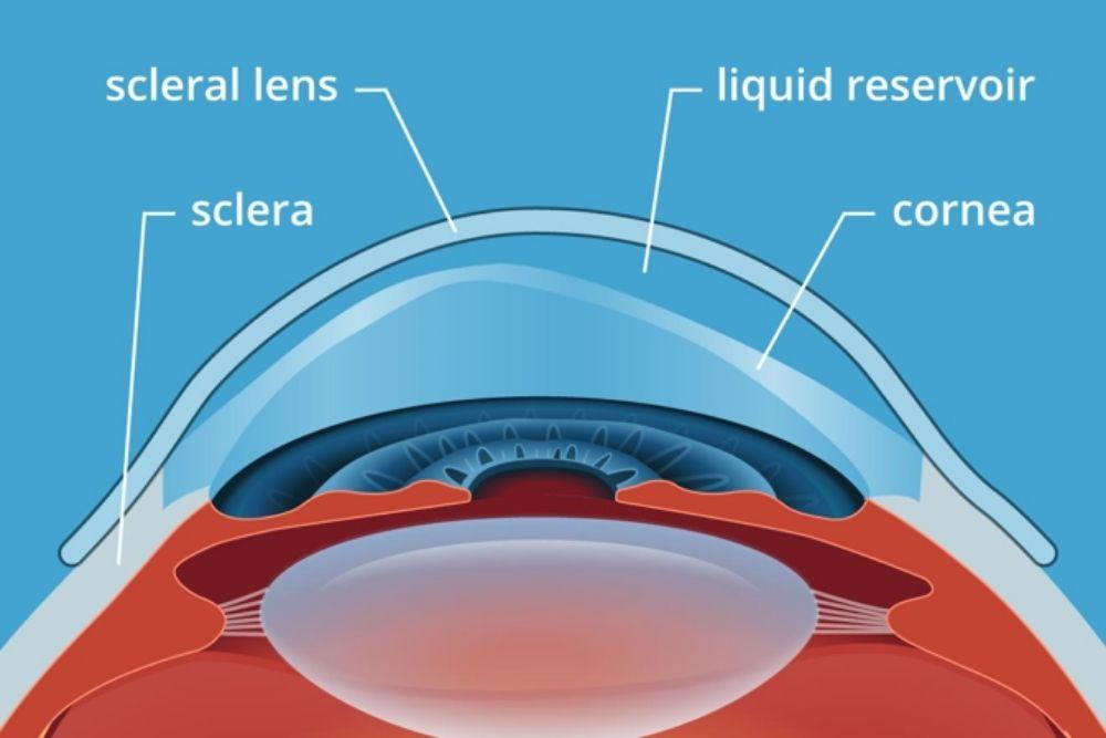 white part of the eye