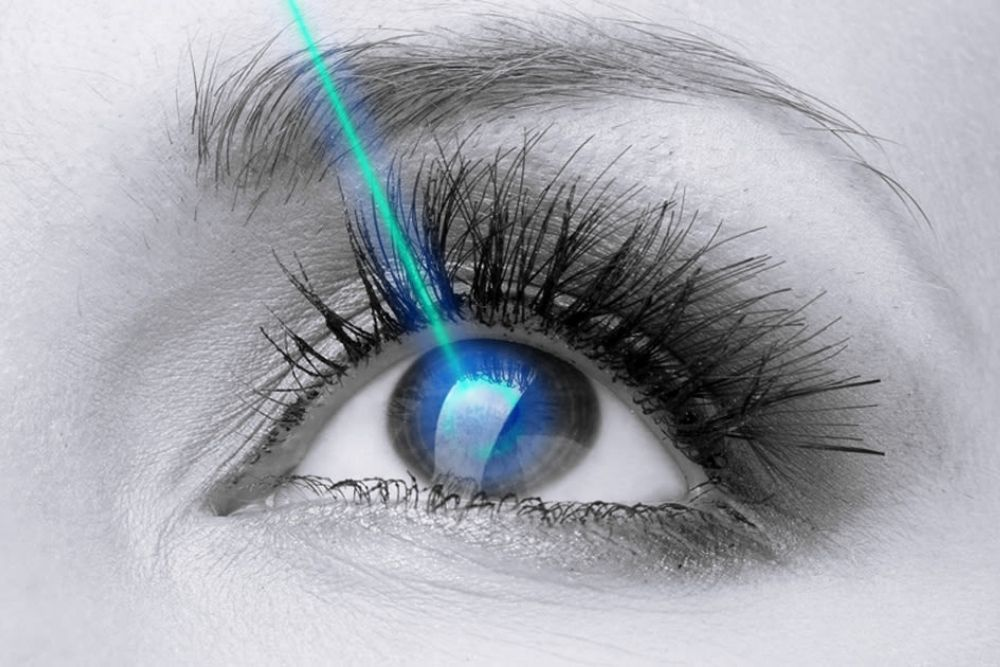 qualifications for lasik