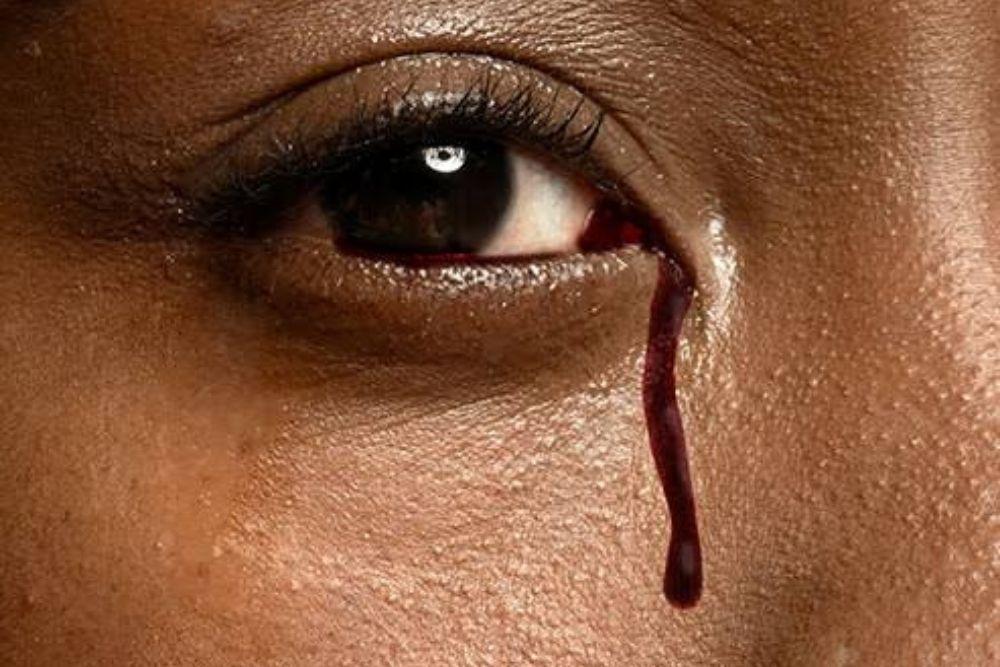 hindi karaniwang mga kondisyon sa mata