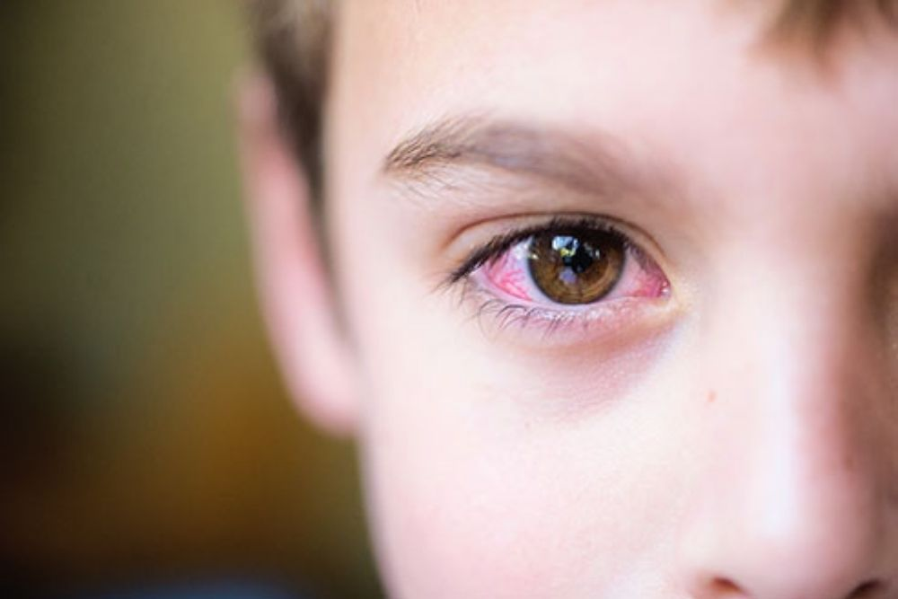childhood eye diseases