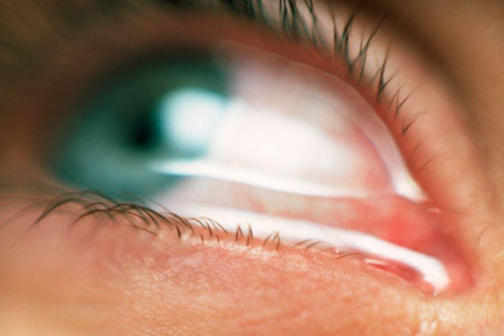 soothe eye allergies