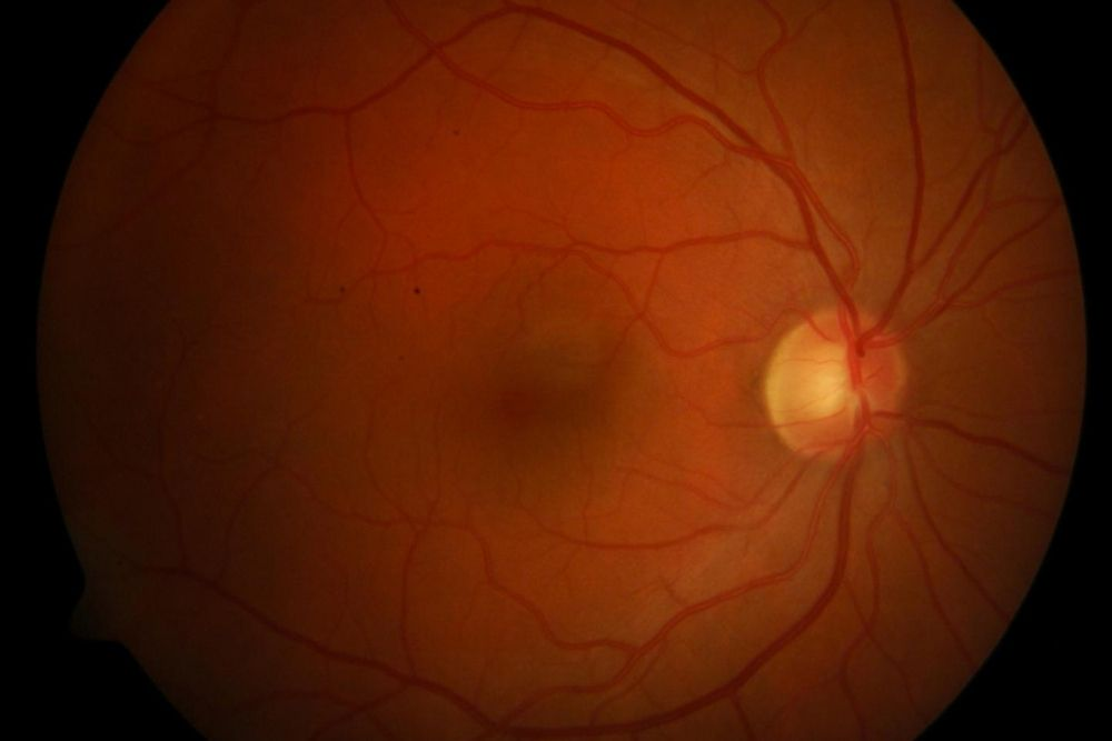 new technologies diabetic retinopathy