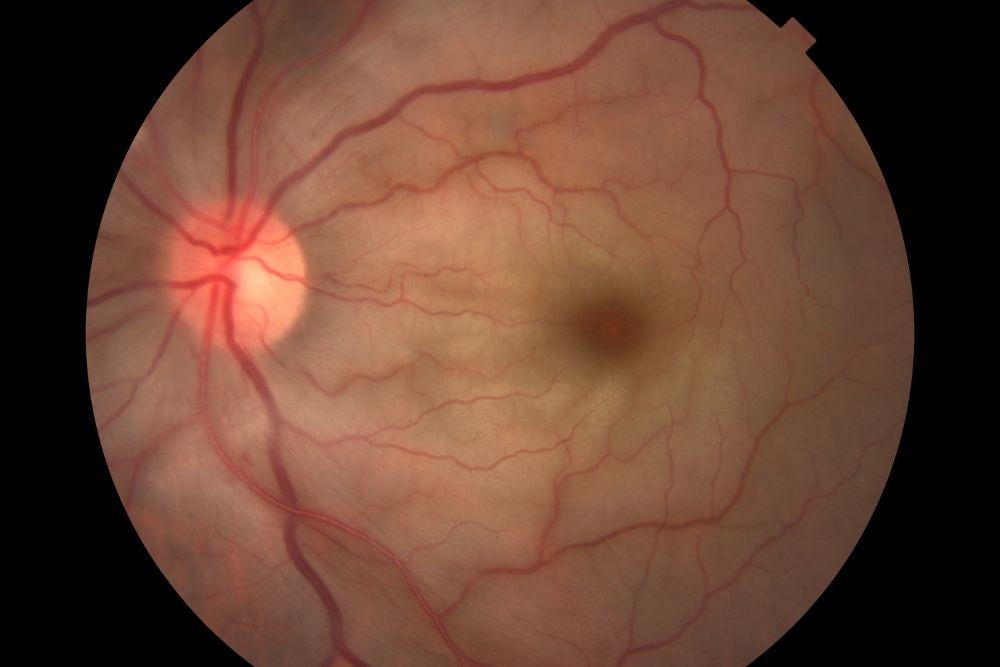 ano ang retinal artery occlusion