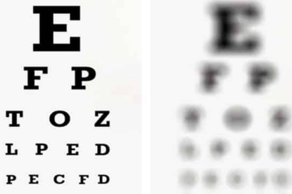 what you need to know about legal blindness