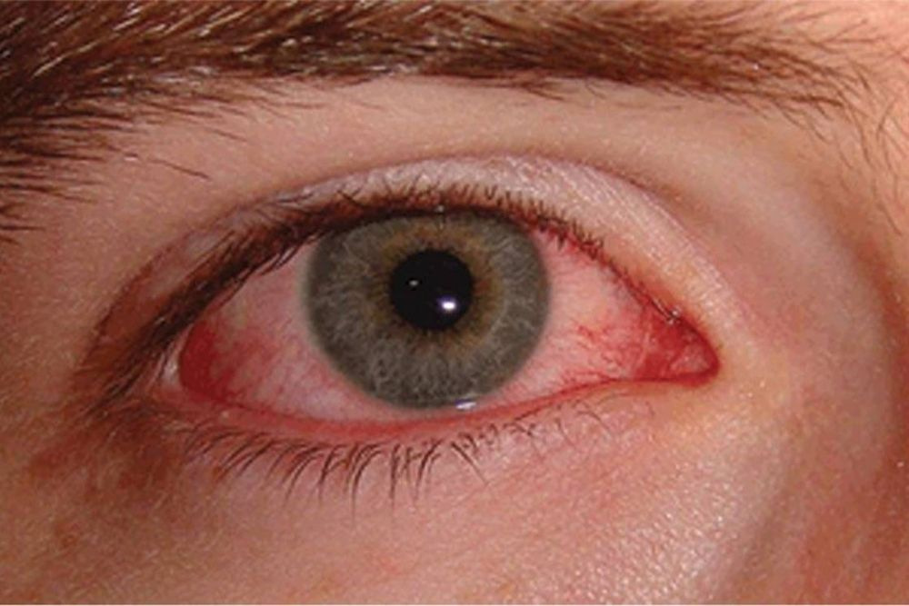 discoloration in the white of my eyes