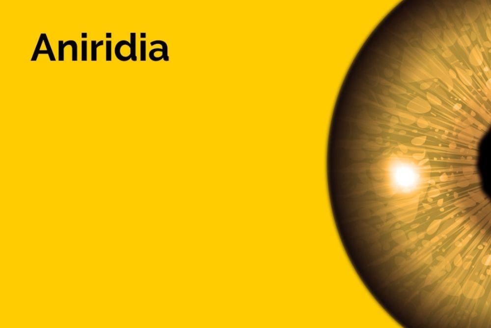 aniridia eye condition