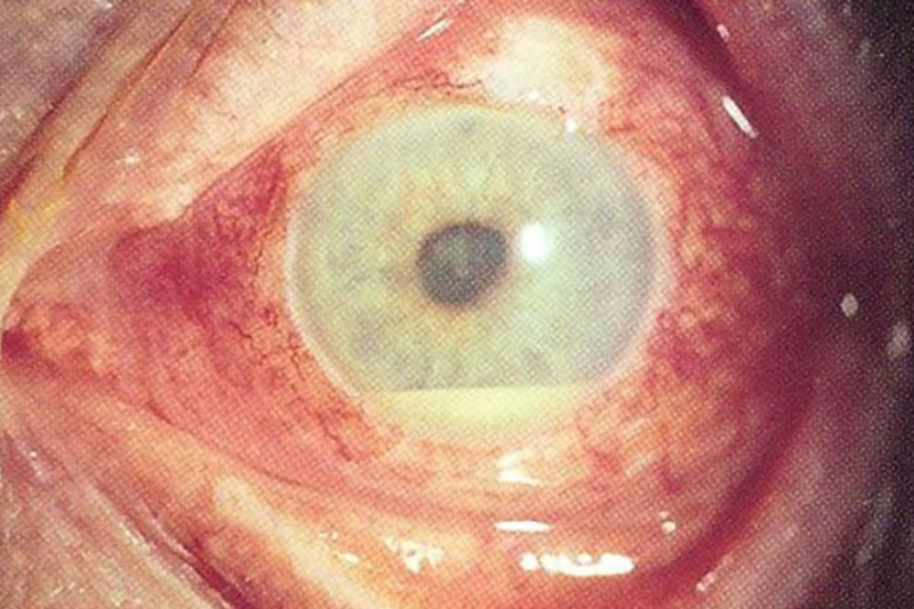 behçet's disease pamamaga ng daluyan ng dugo