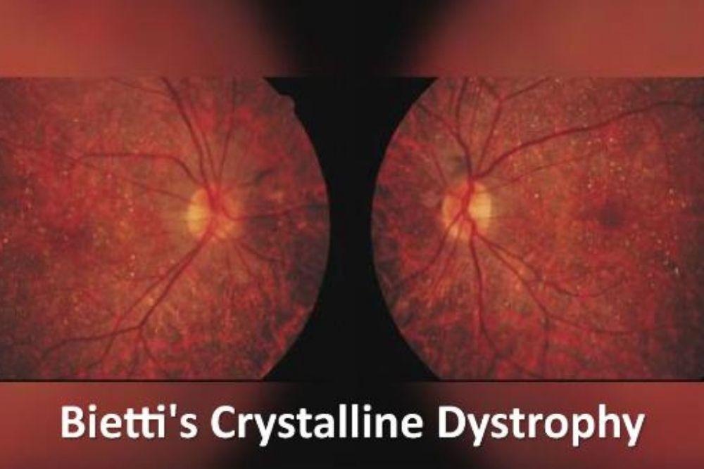 bietti crystalline dystrophy yellow white crystals